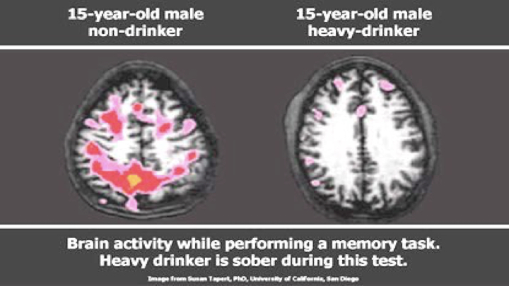 15 Yr old Brain Drinker vs. Non Drinker